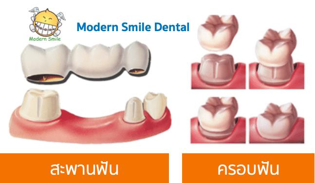 ฟันปลอมแบบติดแน่น จะแบ่งออกได้เป็น สะพานฟัน และ ครอบฟัน