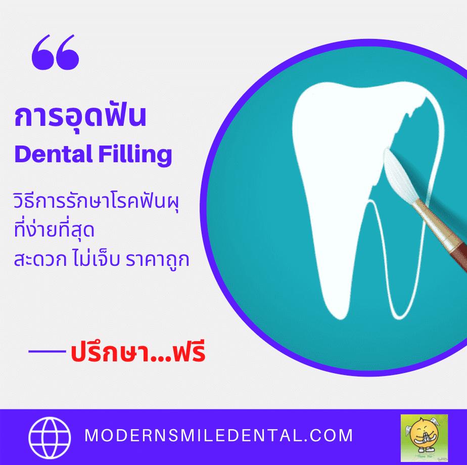 การอุดฟันคือวิธีการรักษาฟัน โดยการทดแทนลักษณะโครงสร้างของฟันที่สูญเสียไป