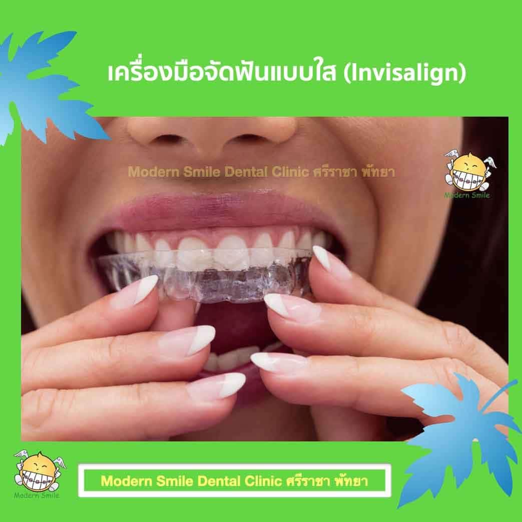 เครื่องมือทันตกรรมจัดฟัน เครื่องมือจัดฟันแบบใส (Invisalign)