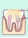 ใส่เดือยฟันหลังรักษารากฟันเสร็จเพื่อใส่ครอบฟันต่อไป