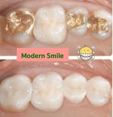 เปรียบเทียบการอุดฟันด้วยวัสดุ ทอง กับ คอมโพสิต