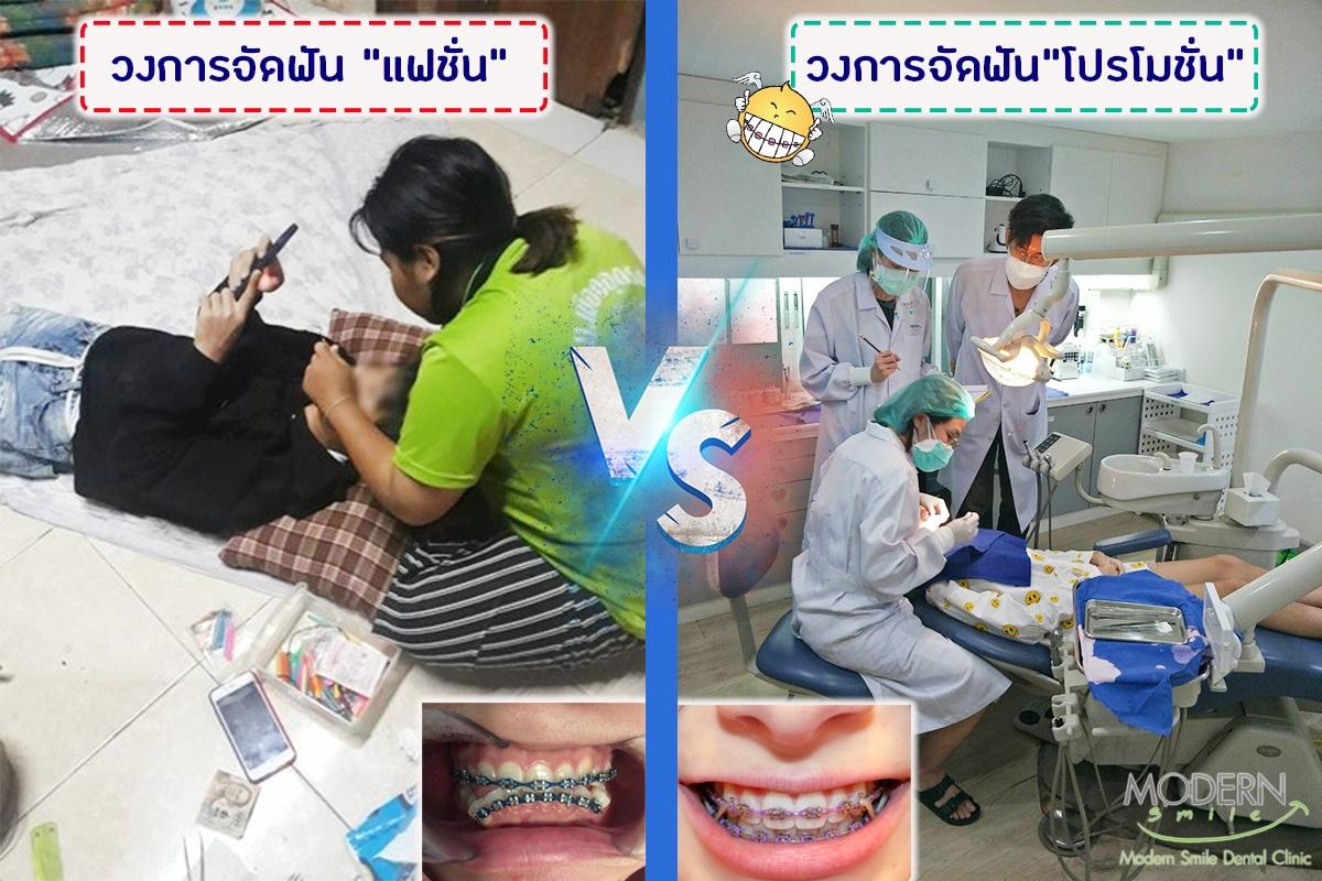 จัดฟันแฟชั่นพัทยาราคาถูก