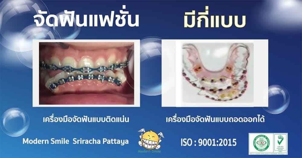 จัดฟันแฟชั่นมี 2 แบบ แบบถอดได้ และแบบติดแน่น