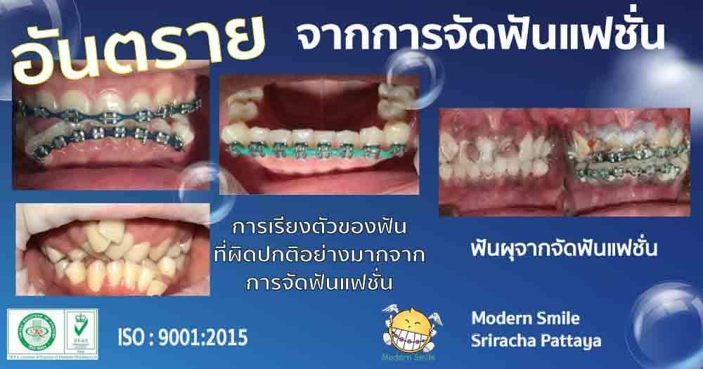 จัดฟันแฟชั่น อันตราย ก่อให้เกิดฟันผุ ฟันเรียงผิดรูป