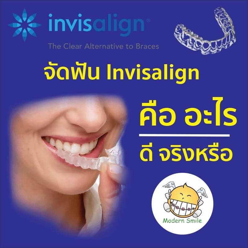 Invisalign คืออะไร ดีจริงหรือ หาคำตอบที่ Modern Smile ศรีราชา พัทยา