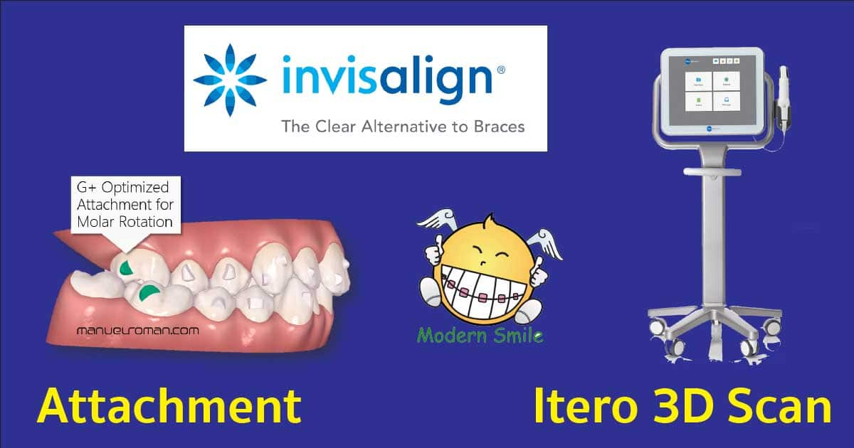 attachment Itero 3d scan invisalign modern smile ศรีราชา พัทยา