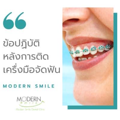 ขัอควรปฏิบัติหลังติดเครื่องมือจัดฟัน Modern Smile Dental Clinic ทำฟัน จัดฟัน ศรีราชา พัทยา ชลบุรี