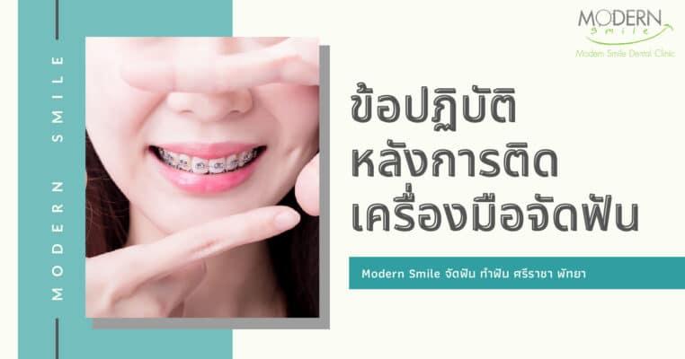 ข้อปฏิบัติ หลังการติดเครื่องมือจัดฟัน Modern Smile ทำฟัน จัดฟัน ศรีราชา พัทยา