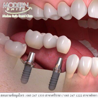 ครอบฟันพัทยาราคาถูก
