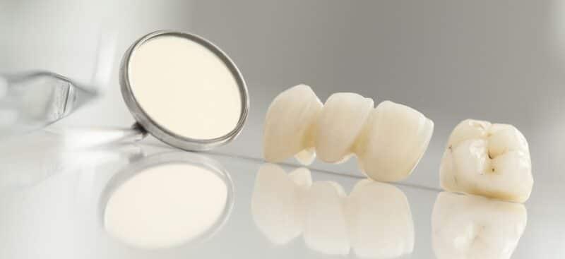 ครอบฟันราคาถูกพัทยา