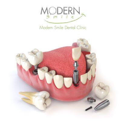 ฟันปลอมพัทยาราคาถูก
