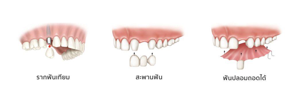 รากฟันเทียมพัทยาราคาถูก