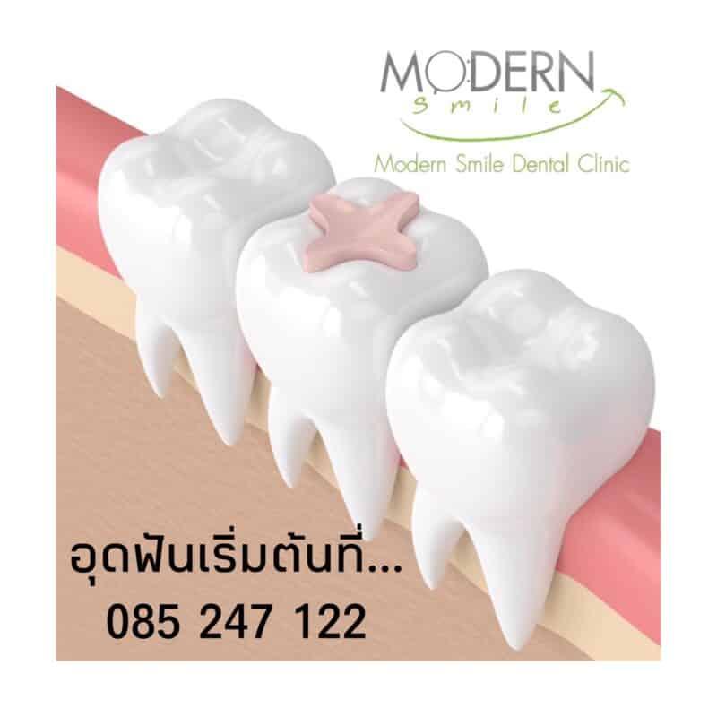 อุดฟันพัทยาราคาถูกอุดฟันประกันสังคมอุดฟันพัทยากลางอุดฟัน