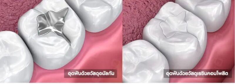 อุดฟันพัทยาราคาถูกอุดฟันประกันสังคม