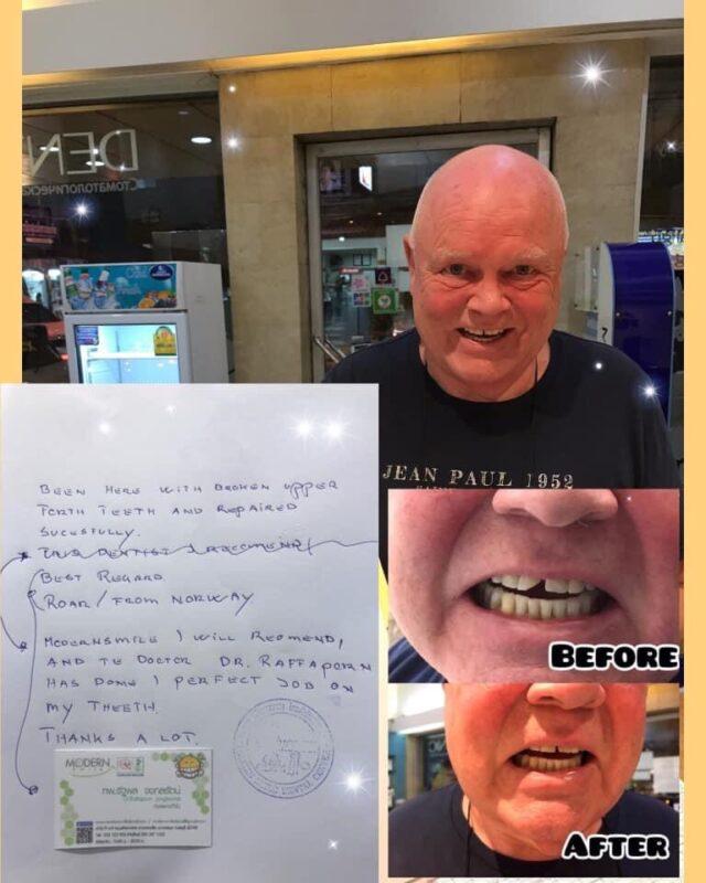 อุดฟันพัทยาราคาถูก อุดฟันพัทยา