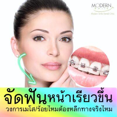 ข้อปฏิบัติ หลังการจัดฟัน