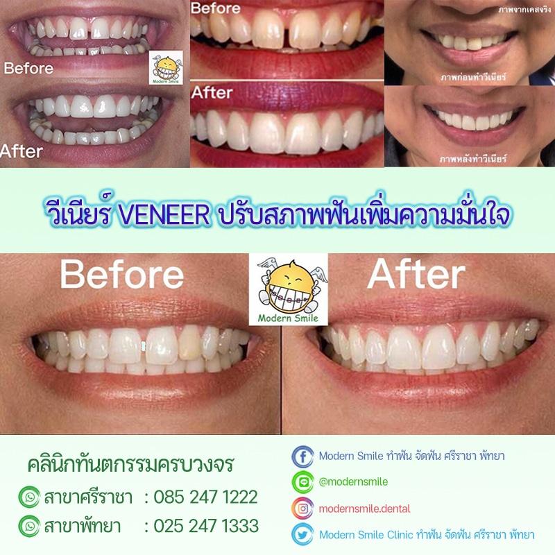 Review รีวิว ทำ Veneer กระเบื้องเคลือบฟันเทียม ที่คลินิก Modern Smile ทำฟัน จัดฟัน ศรีราชา พัทยา ชลบุรี