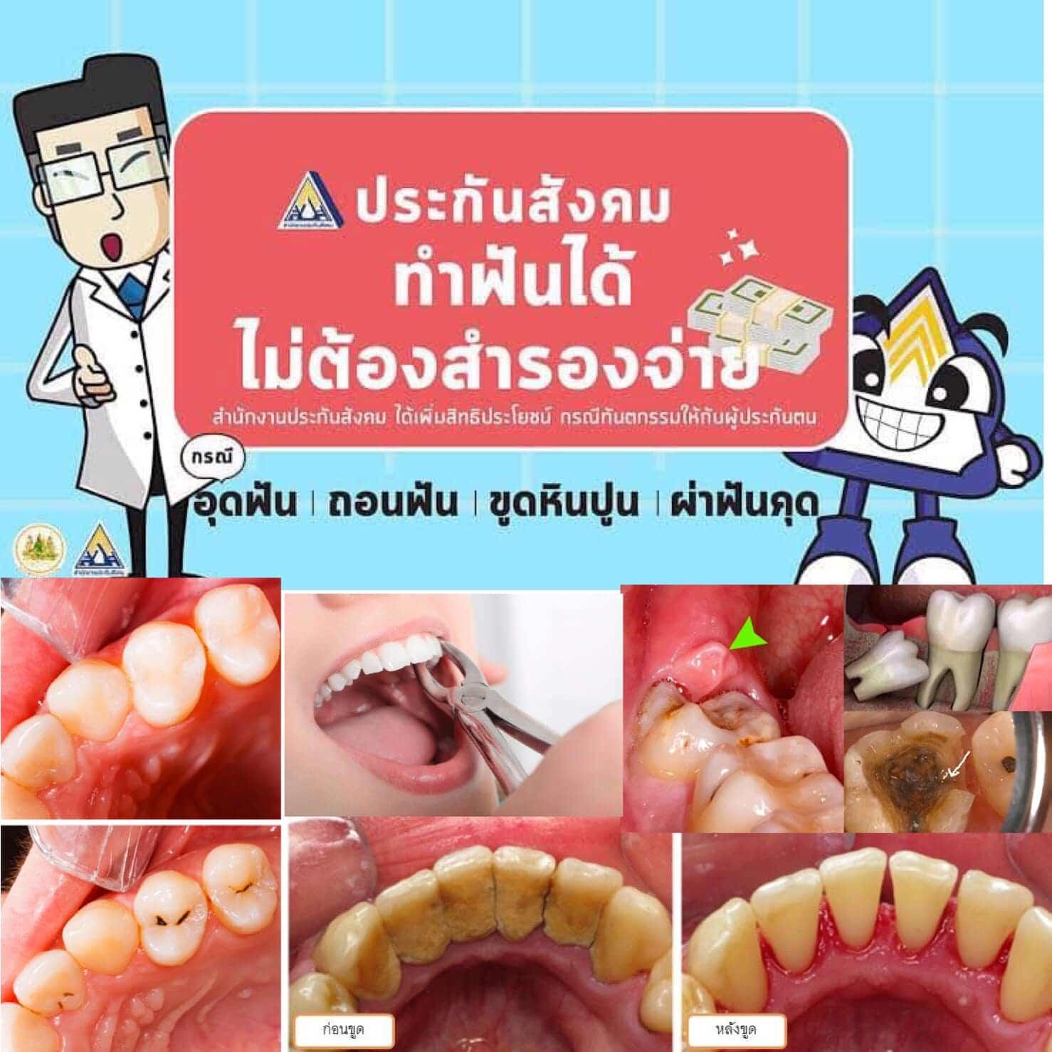 เบิกประกันสังคม ทำฟันฟรี Modern Smile ทำฟัน จัดฟัน ศรีราชา พัทยา