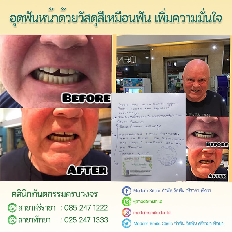 Review รีวิว ก่อนอุดฟัน หลังอุดฟัน Modern Smile ทำฟัน จัดฟัน ศรีราชา พัทยา ชลบุรี