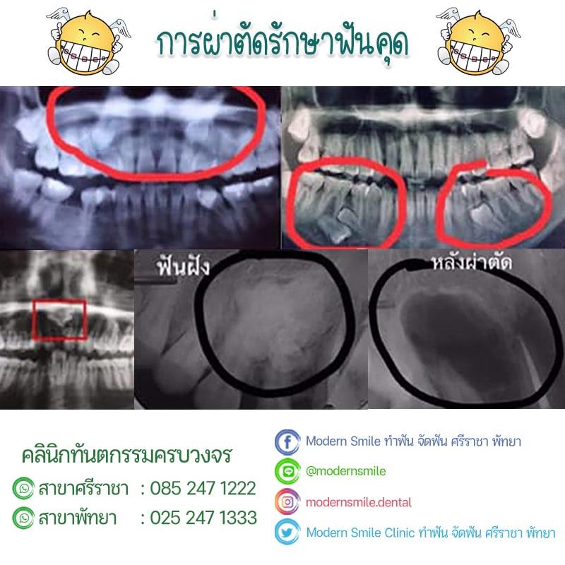 Review รีวิว ก่อน-หลังผ่าฟันคุด ก่อน-หลังถอนฟันคุด Modern Smile ทำฟัน จัดฟัน ศรีราชา พัทยา ชลบุรี