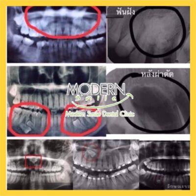 ผ่าฟันคุดพัทยาราคาถูก