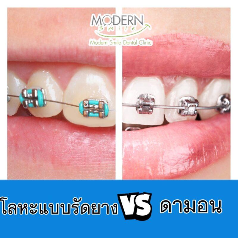 จัดฟันแบบไหนดี